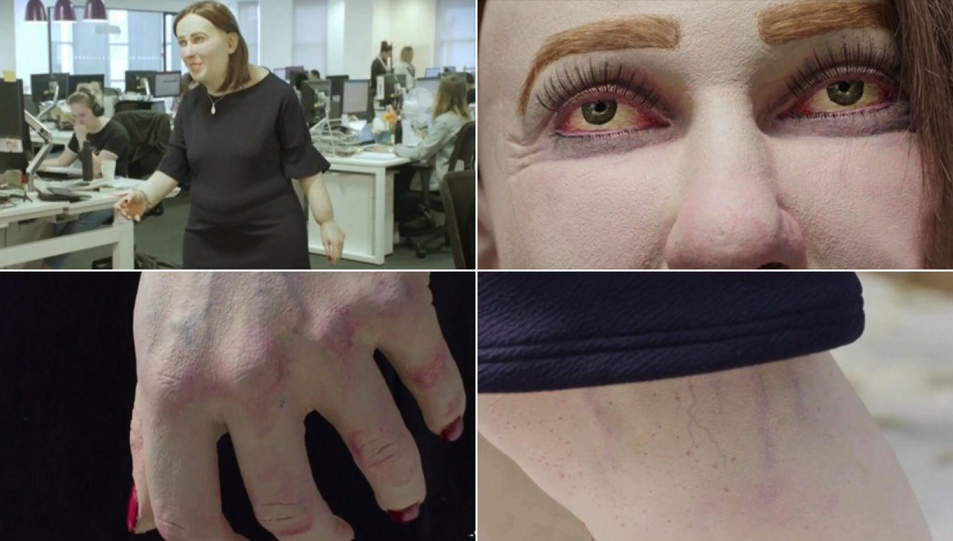 Model Emmy pokazuje jak szkodzi praca przy biurku (fot. tvp.info)