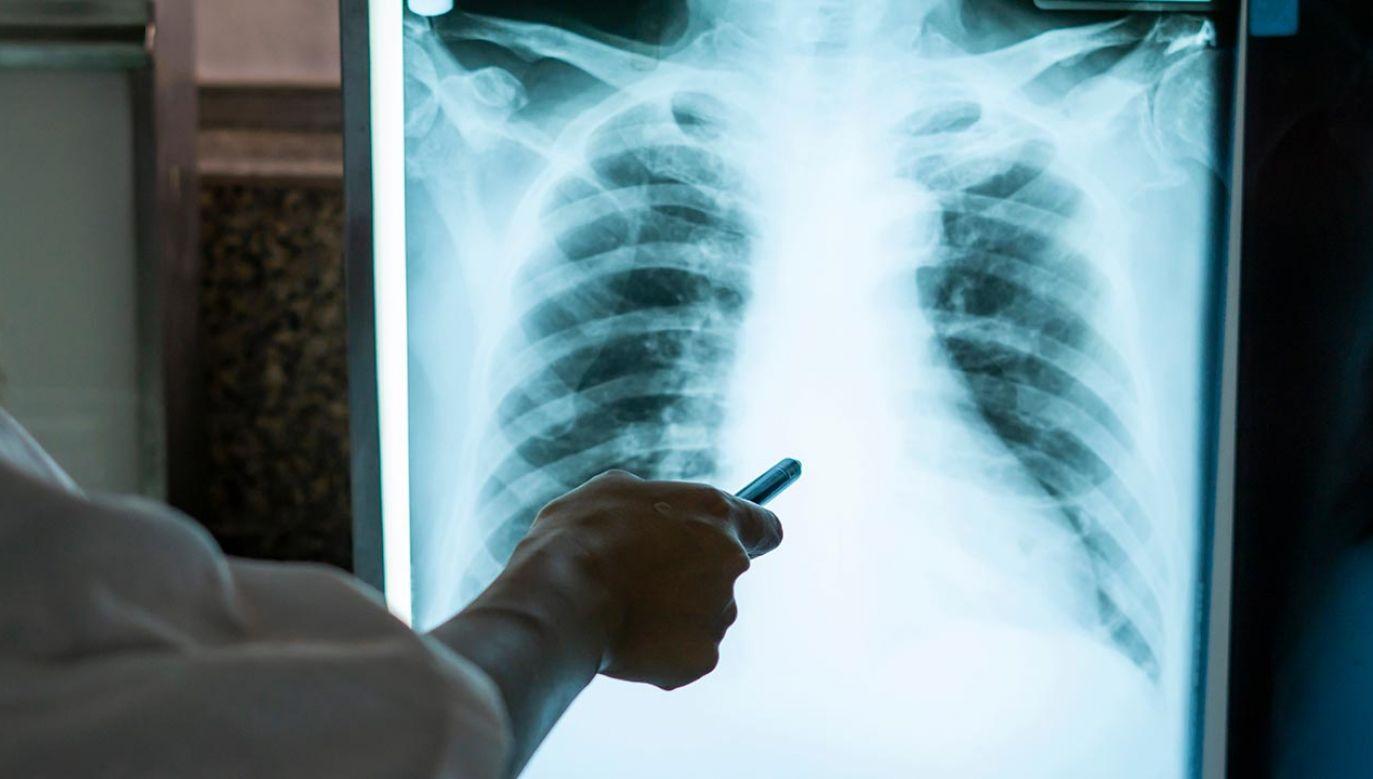 Powstał najdokładniejszym jak dotąd obraz zmian w płucach po infekcji SARS-CoV-2 (fot. Shutterstock/Chokii.Ns)