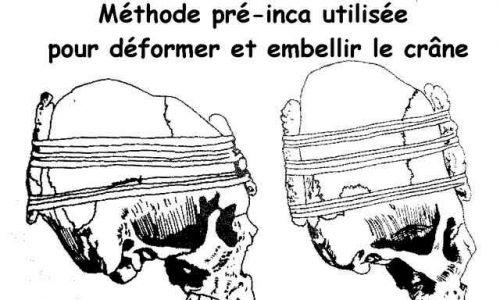 Metoda Pre-Inca używana do deformowania i ozdabiania czaszki. Fot. Wikimedia/Jean Pezzali